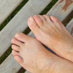 feet with hammertoes