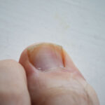 Large toe with ingrown toenail